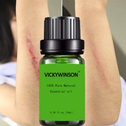 Scar removal & acne treatment - lavender massage oil 10 ml