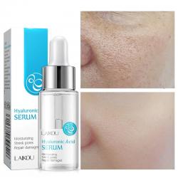 Hyaluronzuur gezichtsserum - hydraterend - poriën verkleinen - verwijderen van acne - voedend